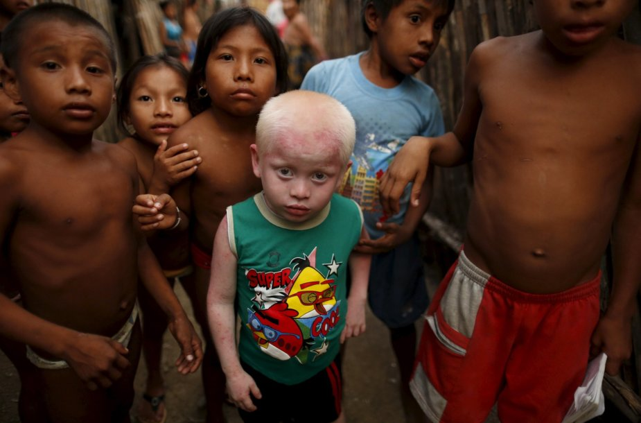 Kunų genties albinosai