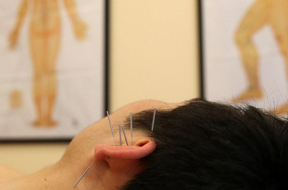 Akupunktūra