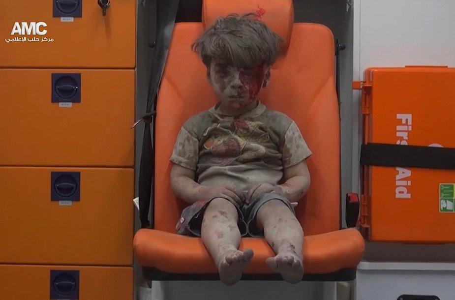 Sužeistas penkiametis Alepe
