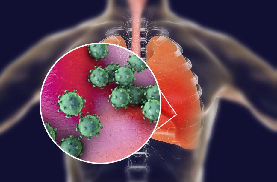 Koronavirusas paveikia kvėpavimo takus