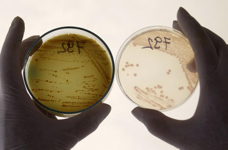 E.coli bakterijos tyrimai