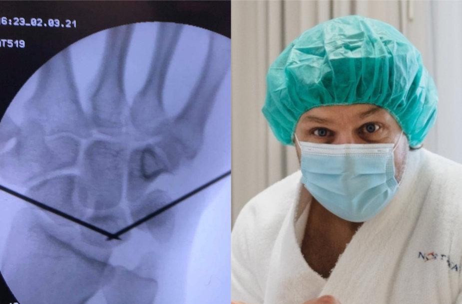Benediktui Vanagui atliktos dvi operacijos