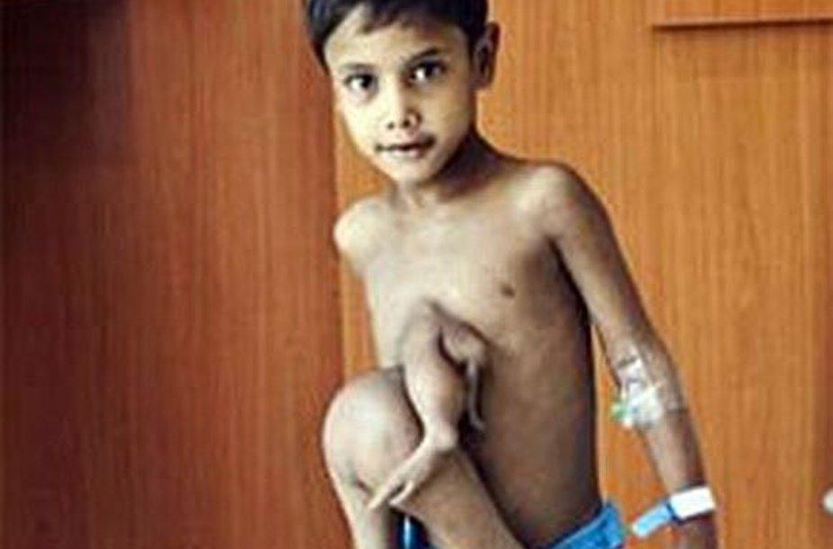 Deepakas Paswaanas gimė su aštuoniomis galūnėmis