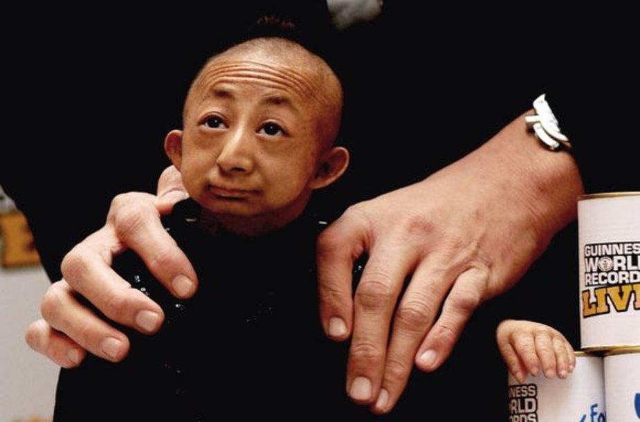 Būdamas 21 metų mirė mažiausias pasaulio žmogus He Pingpingas.