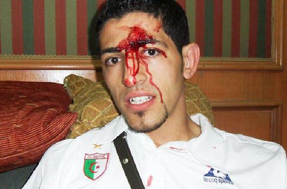 Keli Alžyro žaidėjai po išpuolio buvo sužeisti