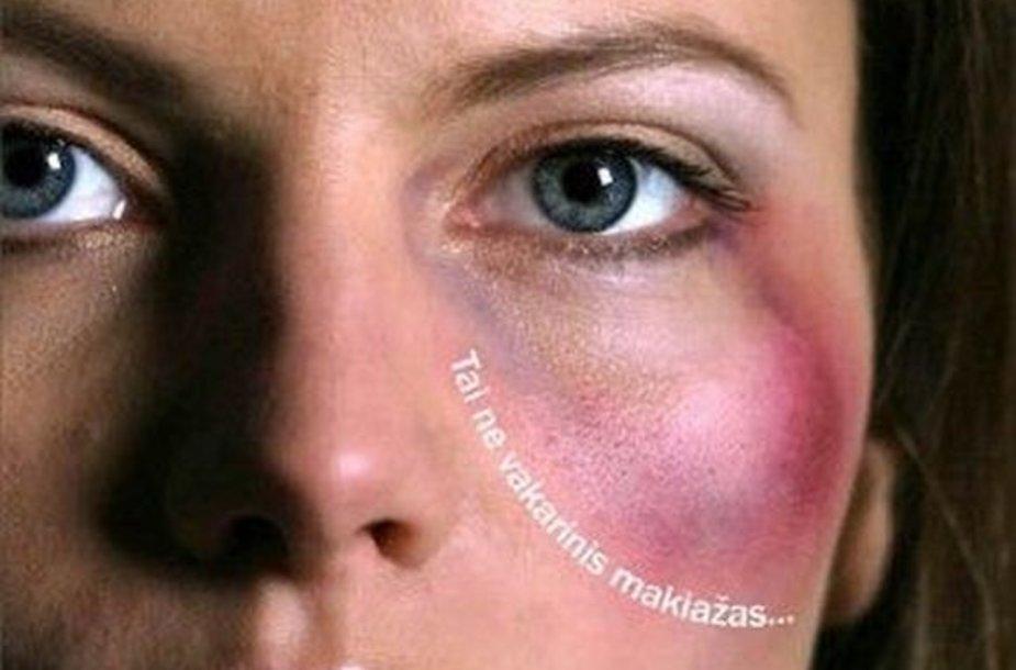 Kauno moterų draugijos kovos su smurtu prieš moteris simbolis - plakatas su sumušta moterimi