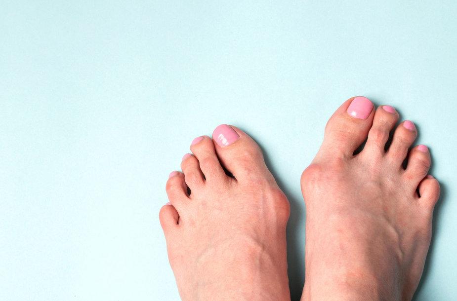 Iškrypęs pėdos didysis pirštas