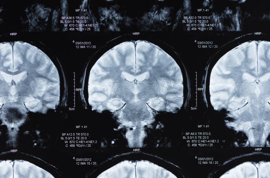 Smegenų tyrimas magnetiniu rezonansu