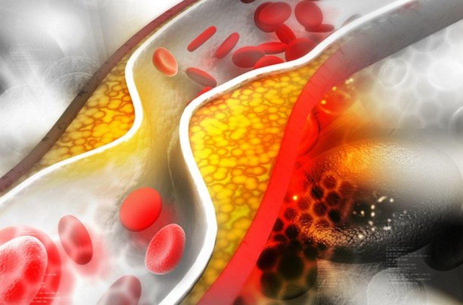 Cholesterolis kemša kraujagysles