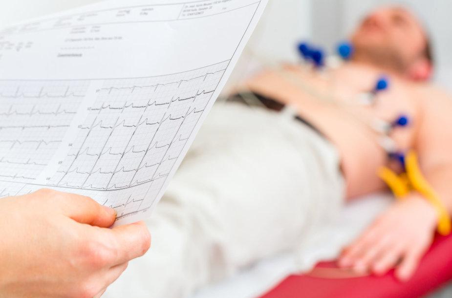 Elektrokardiograma