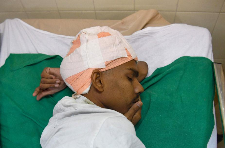 Indijos chirurgai pacientui pašalino sunkiausią žinomą smegenų auglį