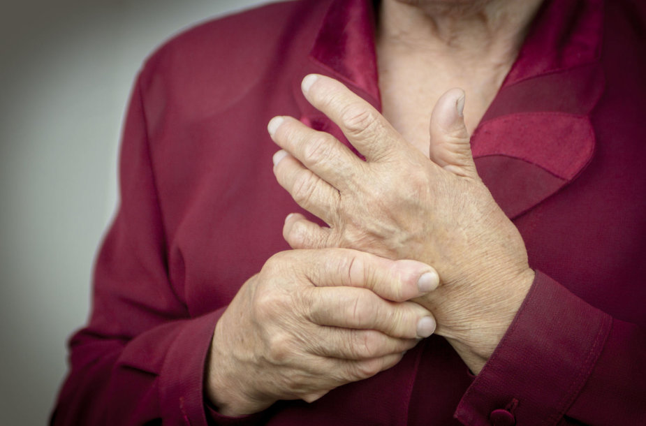 Reumatoidinis artritas