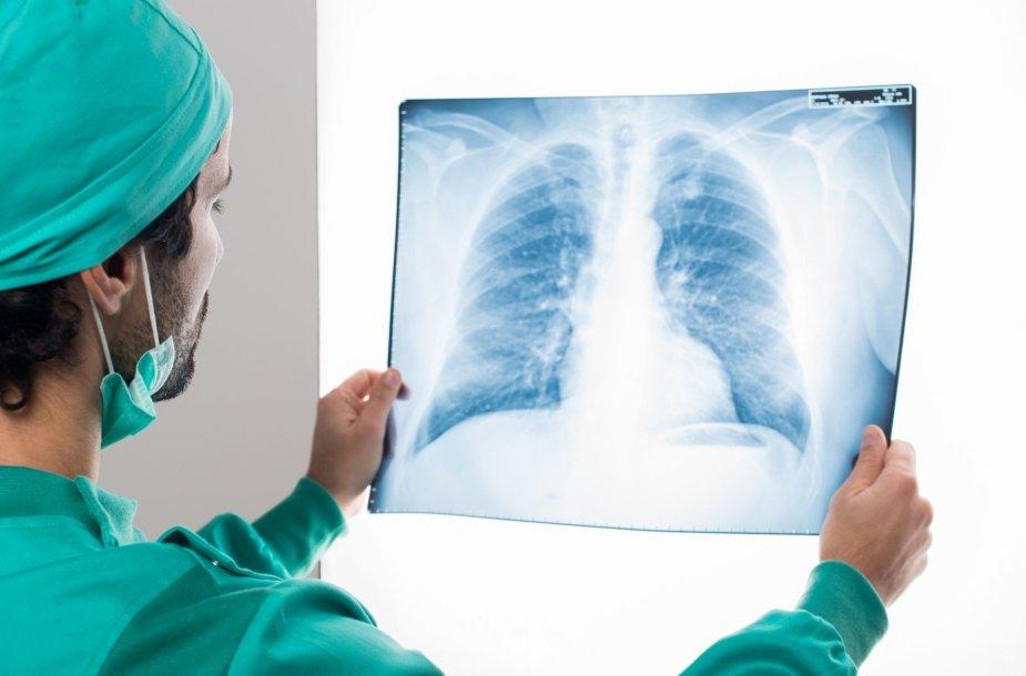 Plaučių transplantacija