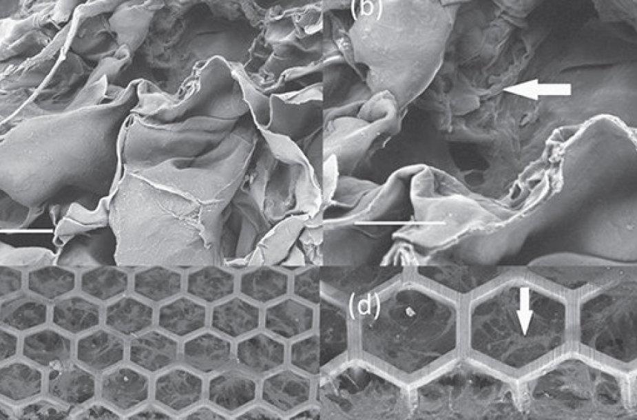 Karkaso vaizdas prieš implantaciją. Justino Mačiulaičio iliustracija