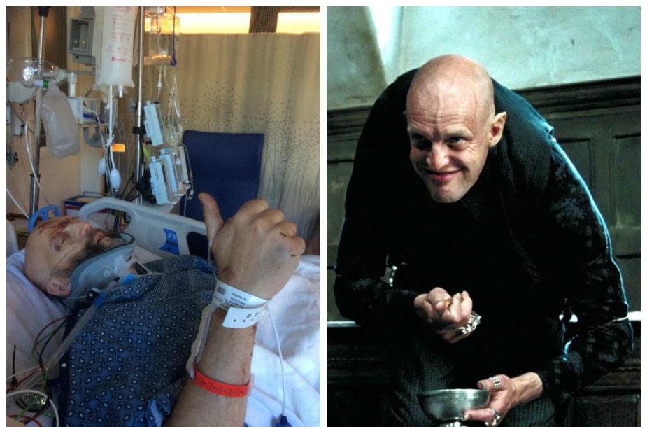 """Jimas Tavare, vaidinęs filme """"Haris Poteris ir Azkabano kalinys"""" (nuotrauka dešinėje), pateko į sunkią avariją"""