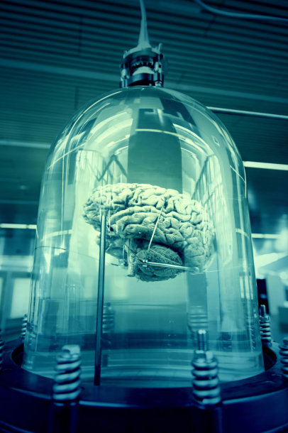 Fiksuotos smegenys