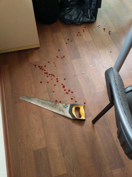 Rukloje kliento užpulta socialinė darbuotoja: pjūklu sužalojo ranką