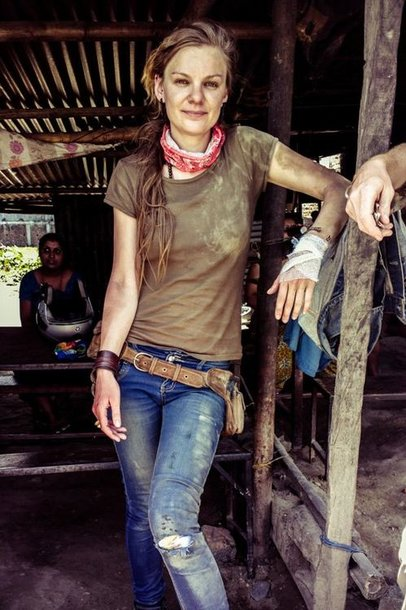 Berta Tilmantaitė po griuvimo nuo motociklo