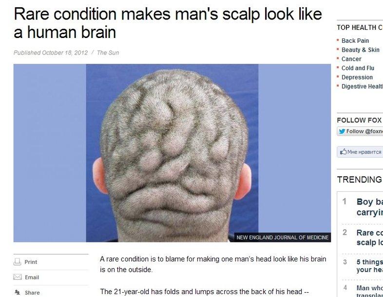 Скриншот с портала Fox News